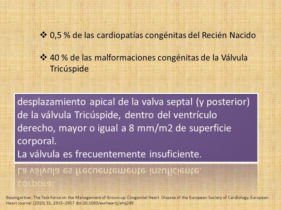 0,5 % de las cardiopatías congénitas del Recién Nacido 40 % de las malformaciones congénitas de la Válvula Tricúspide Baumgartner, The Task Force on the Management of Grown-up Congenital Heart Disease of the European Society of Cardiology.
