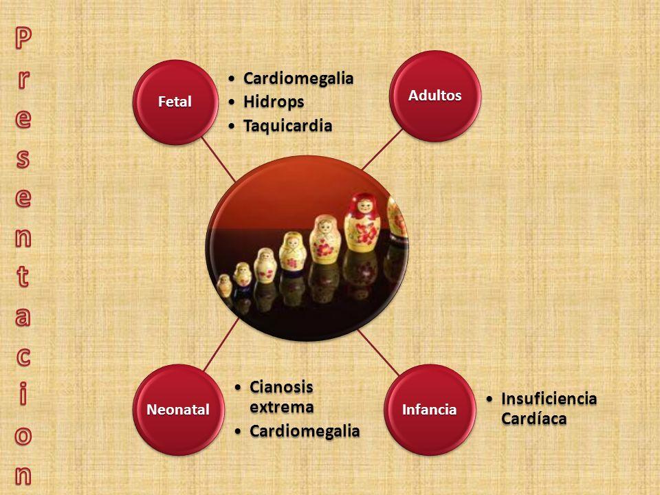Fetal CardiomegaliaCardiomegalia HidropsHidrops TaquicardiaTaquicardia Neonatal Cianosis extremaCianosis extrema CardiomegaliaCardiomegaliaInfancia In