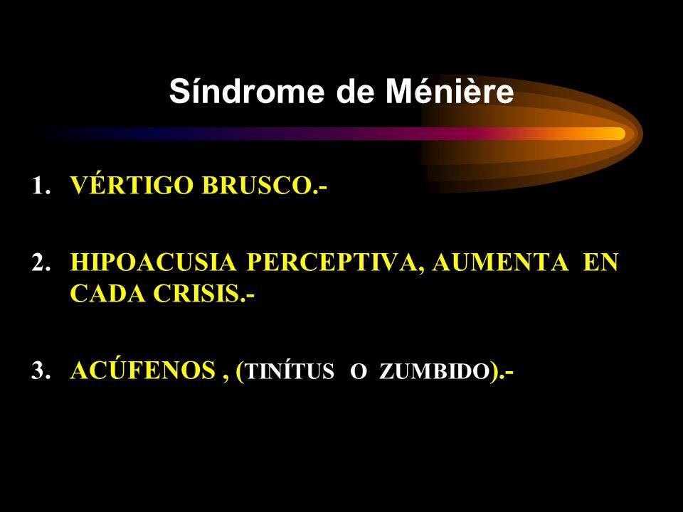 Síndrome de Ménière 1.VÉRTIGO BRUSCO.- 2.HIPOACUSIA PERCEPTIVA, AUMENTA EN CADA CRISIS.- 3.ACÚFENOS, ( TINÍTUS O ZUMBIDO ).-