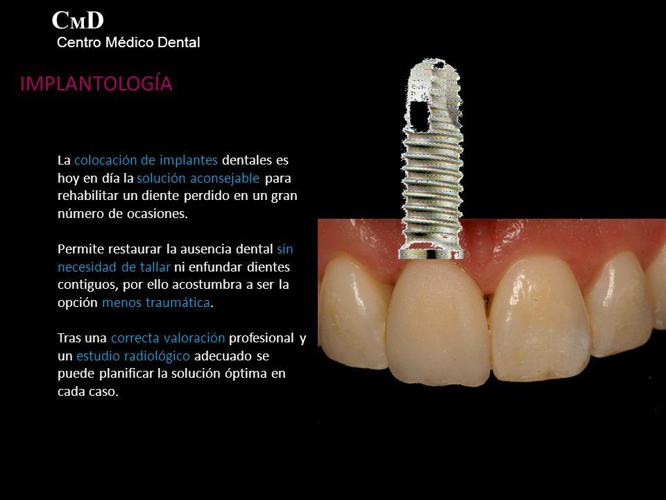 IMPLANTOLOGÍA La colocación de implantes dentales es hoy en día la solución aconsejable para rehabilitar un diente perdido en un gran número de ocasiones.