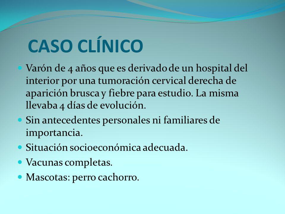 CASO CLÍNICO Varón de 4 años que es derivado de un hospital del interior por una tumoración cervical derecha de aparición brusca y fiebre para estudio.