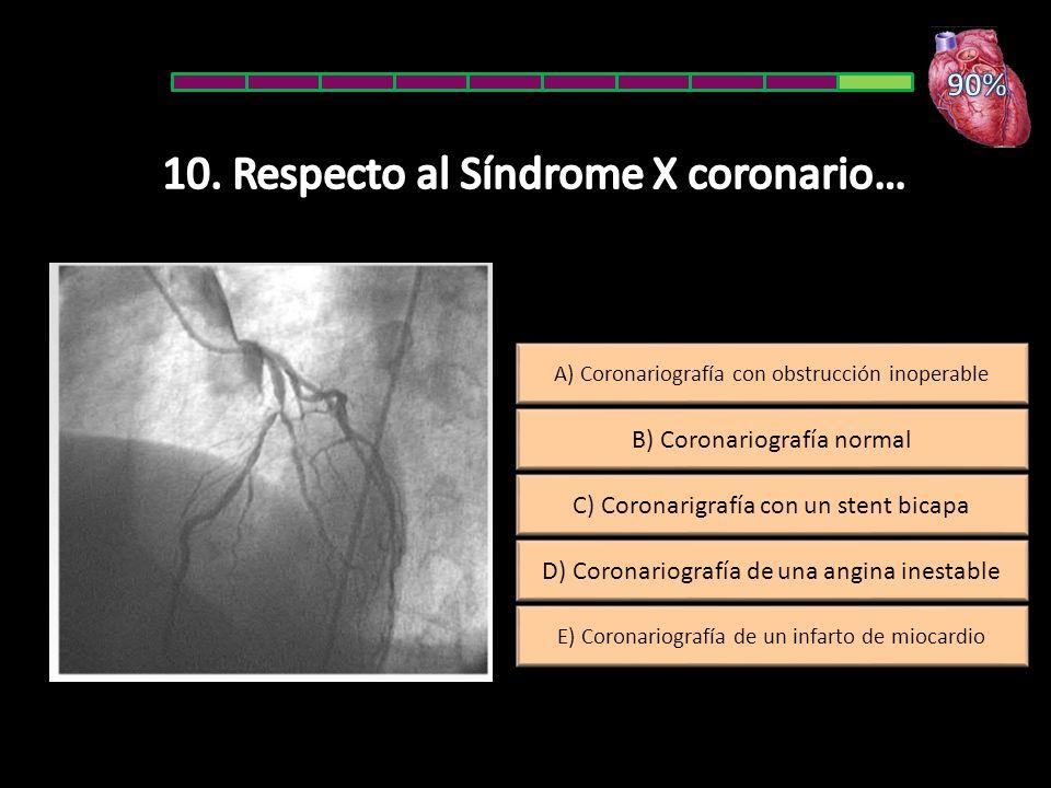 D) Coronariografía de una angina inestable A) Coronariografía con obstrucción inoperable E) Coronariografía de un infarto de miocardio C) Coronarigrafía con un stent bicapa B) Coronariografía normal