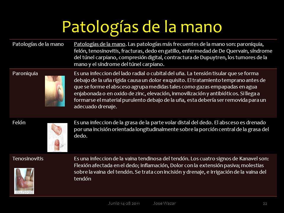 Patologías de la mano Junio 14-28 2011 Jose Wazar22 Patologías de la manoPatologías de la mano. Las patologías más frecuentes de la mano son: paroniqu
