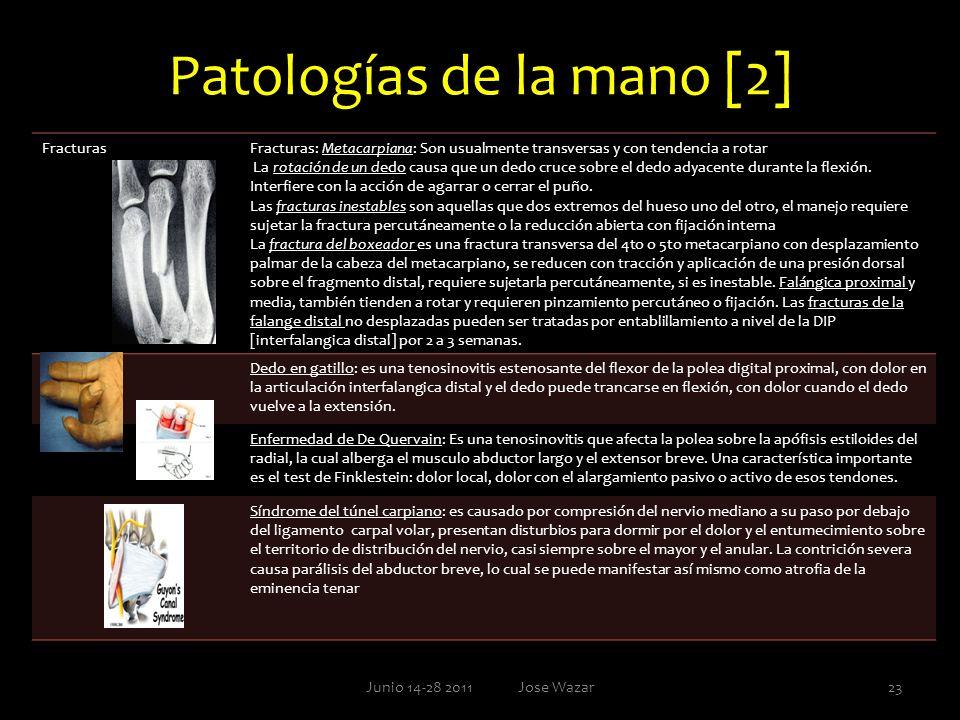 Patologías de la mano [2] Junio 14-28 2011 Jose Wazar23 FracturasFracturas: Metacarpiana: Son usualmente transversas y con tendencia a rotar La rotaci