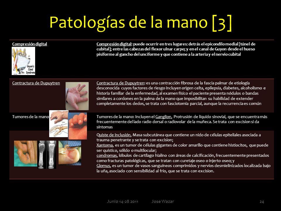 Patologías de la mano [3] Junio 14-28 2011 Jose Wazar24 Compresión digitalCompresión digital: puede ocurrir en tres lugares: detrás el epicondilo medi