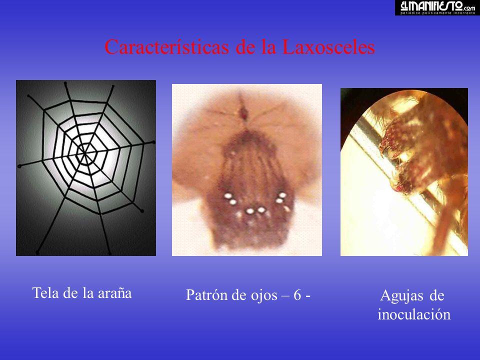 Características de la Laxosceles Tela de la araña Patrón de ojos – 6 - Agujas de inoculación