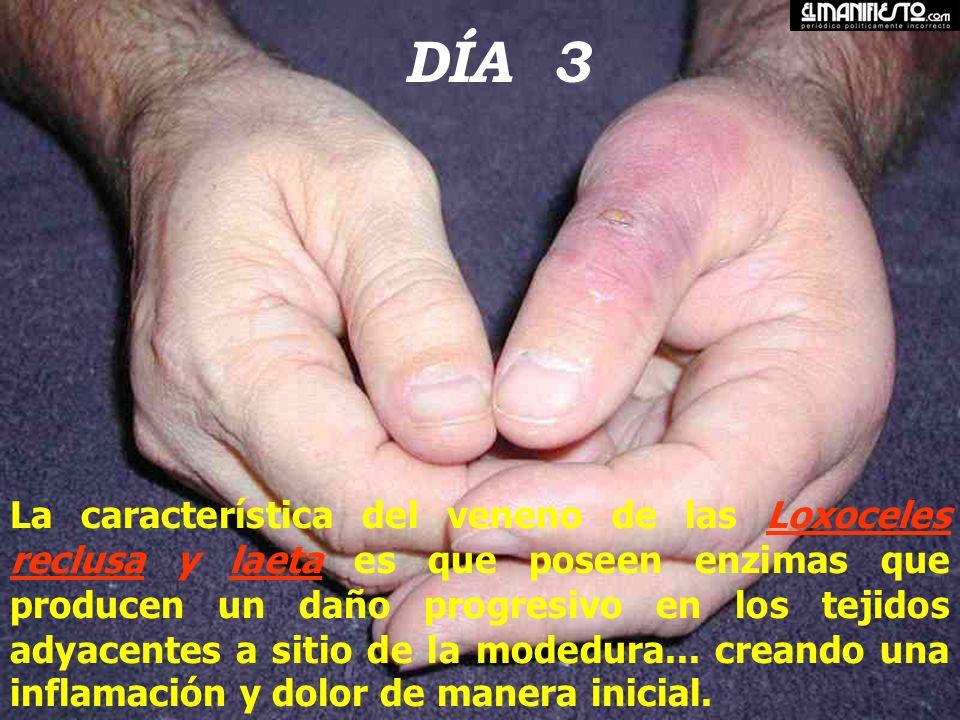 Loxoscelismo: Úlceras A las tres semanas A las dos semanas Bulas y fictena