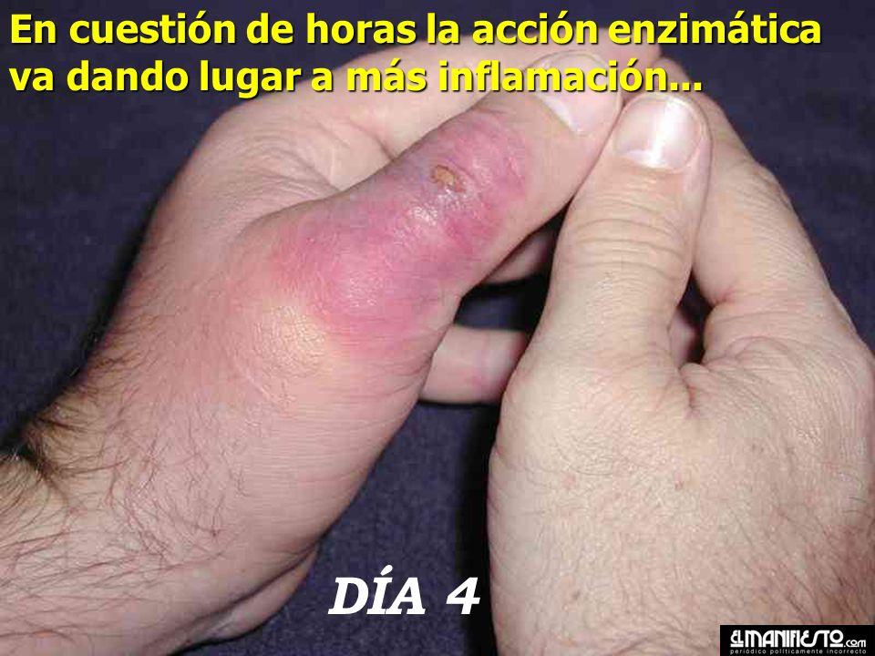 DÍA 3 La característica del veneno de las Loxoceles reclusa y laeta es que poseen enzimas que producen un daño progresivo en los tejidos adyacentes a