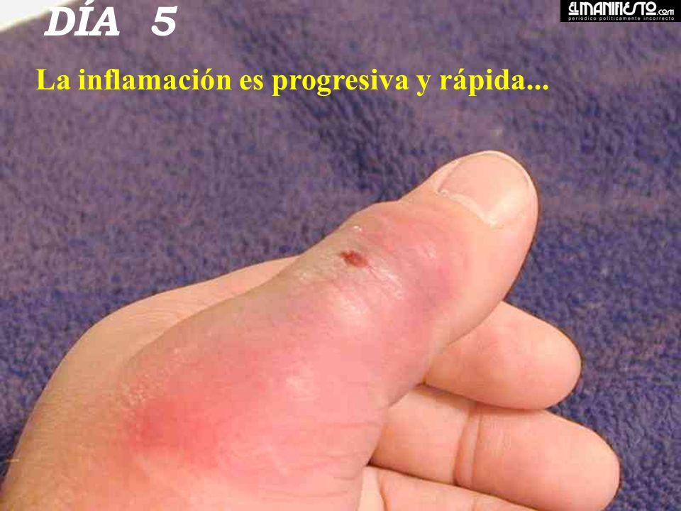 DÍA 5 La inflamación es progresiva y rápida...