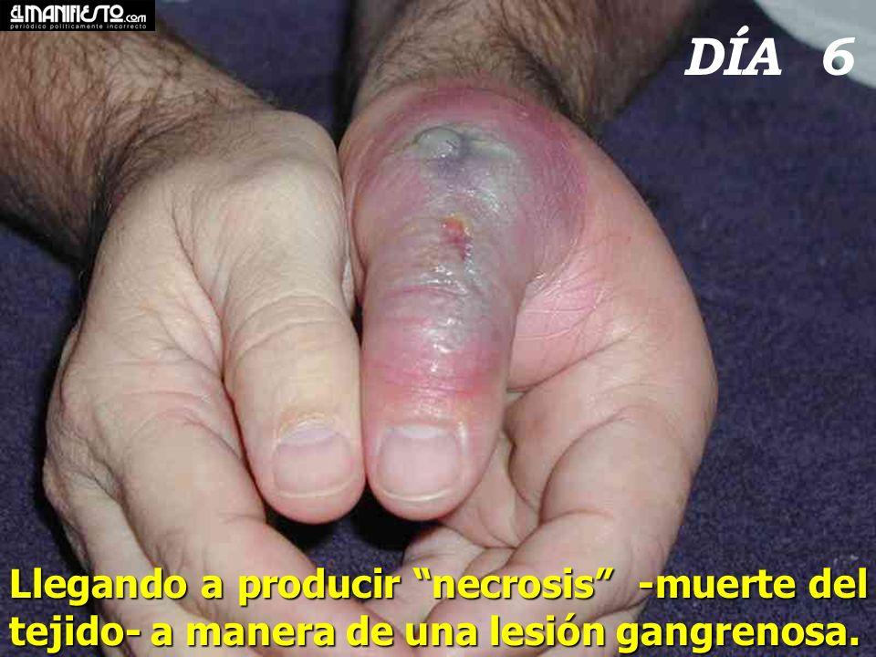 DÍA 6 Llegando a producir necrosis -muerte del tejido- a manera de una lesión gangrenosa.