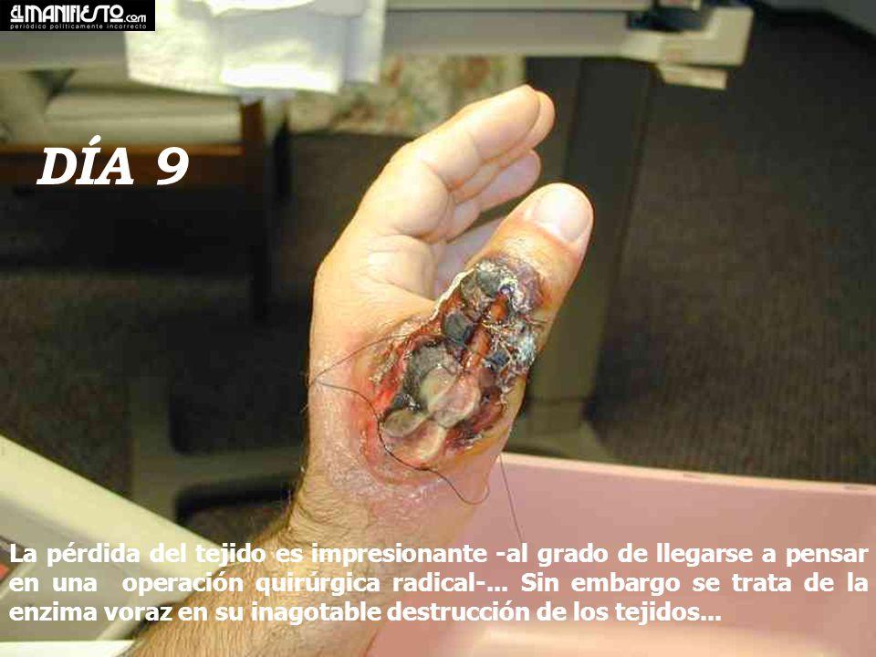 DÍA 9 La pérdida del tejido es impresionante -al grado de llegarse a pensar en una operación quirúrgica radical-...