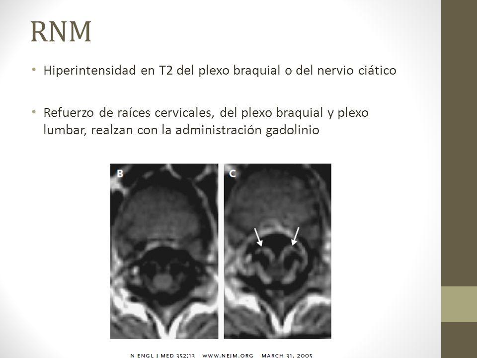 RNM Hiperintensidad en T2 del plexo braquial o del nervio ciático Refuerzo de raíces cervicales, del plexo braquial y plexo lumbar, realzan con la adm