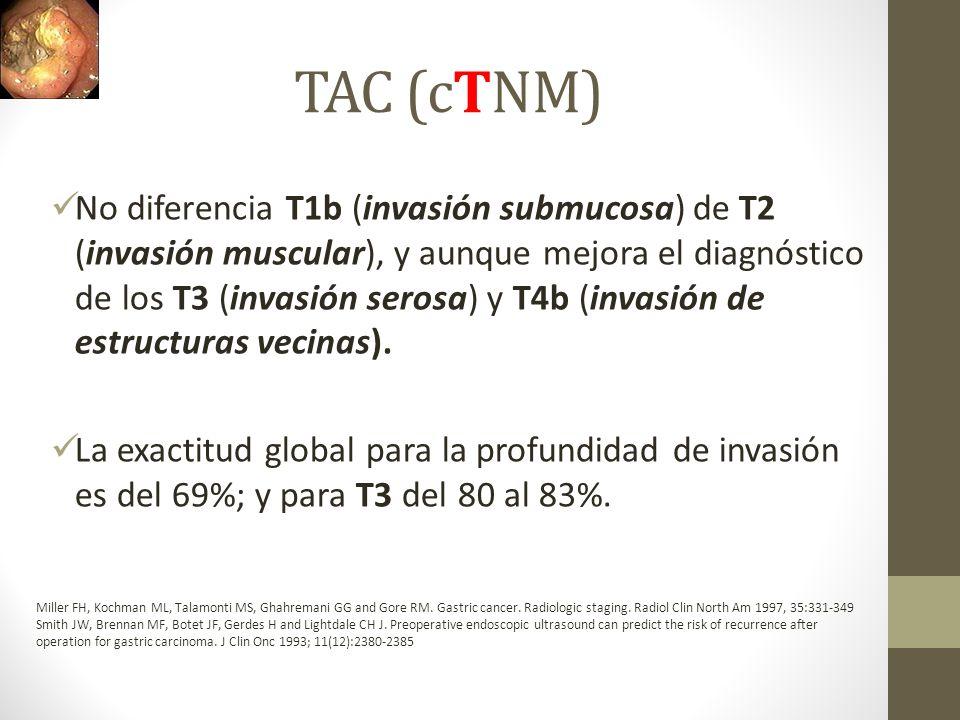 TAC (cTNM) No diferencia T1b (invasión submucosa) de T2 (invasión muscular), y aunque mejora el diagnóstico de los T3 (invasión serosa) y T4b (invasió