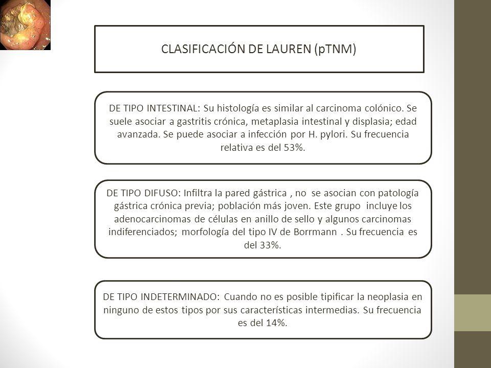 CLASIFICACIÓN DE LAUREN (pTNM) DE TIPO INTESTINAL: Su histología es similar al carcinoma colónico. Se suele asociar a gastritis crónica, metaplasia in