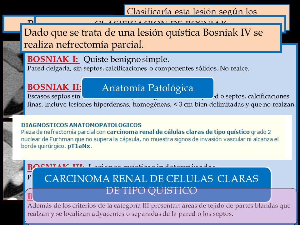 Clasificaría esta lesión según los criterios de BOSNIAK ? A. SI B. NO En que categoría de BOSNIAK clasificaría la lesión? A. Bosniak I B. Bosniak II C
