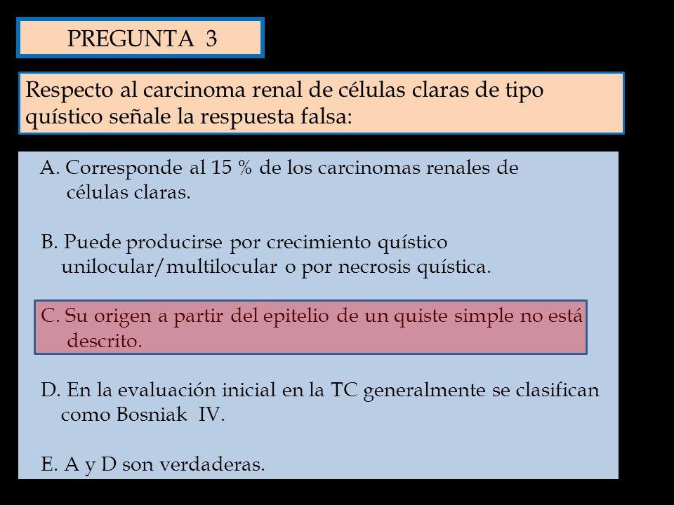 Respecto al carcinoma renal de células claras de tipo quístico señale la respuesta falsa: A. Corresponde al 15 % de los carcinomas renales de células