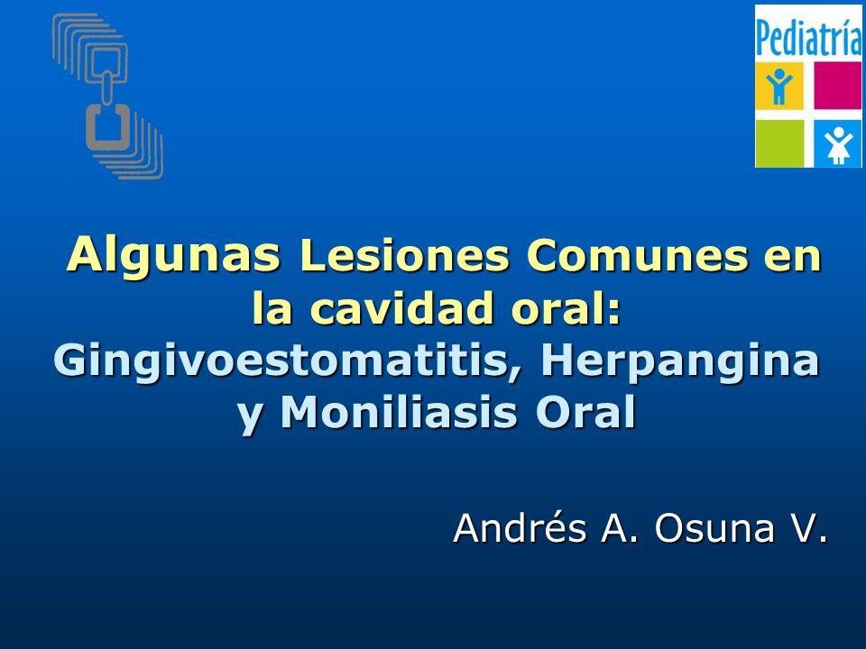 Algunas Lesiones Comunes en la cavidad oral: Gingivoestomatitis, Herpangina y Moniliasis Oral Algunas Lesiones Comunes en la cavidad oral: Gingivoestomatitis, Herpangina y Moniliasis Oral Andrés A.
