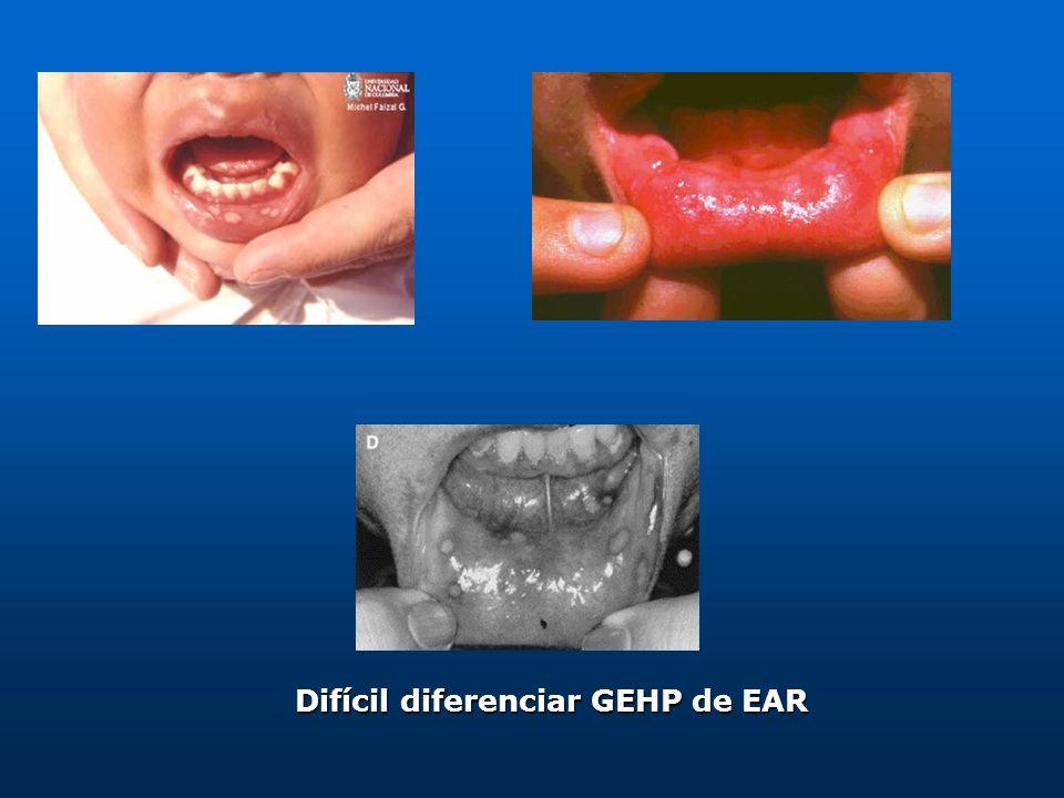 Herpangina Etiología: Coxsackie virus grupo A Comun en menores de 5 años Puede presentarse como: Enfermedad mano-pie-boca Autolimitada, duración < 1 semana