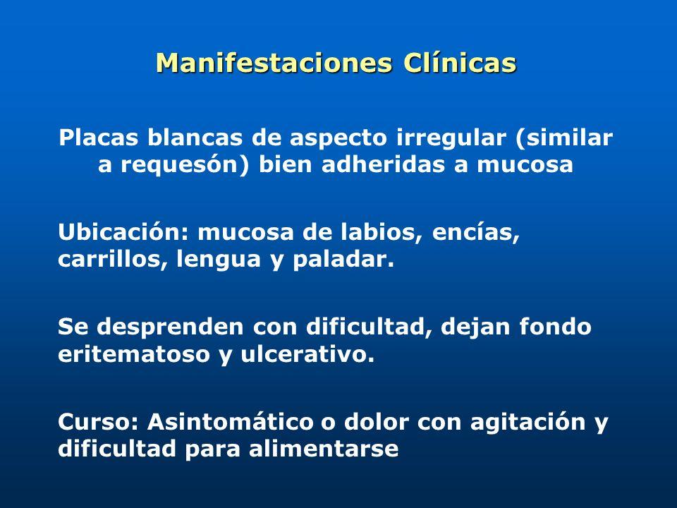 Moniliasis Oral