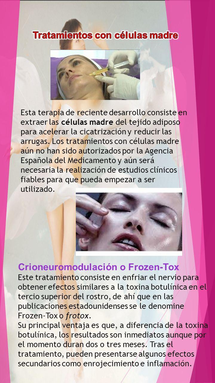 Crioneuromodulación o Frozen-Tox Este tratamiento consiste en enfriar el nervio para obtener efectos similares a la toxina botulínica en el tercio sup
