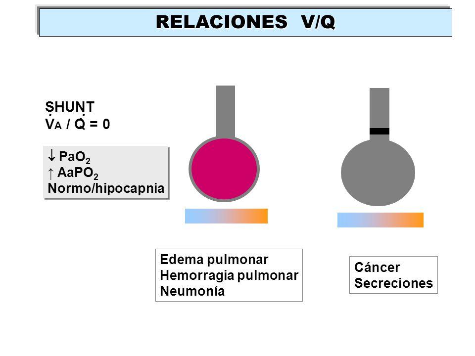 SHUNT V A / Q = 0.. Edema pulmonar Hemorragia pulmonar Neumonía PaO 2 AaPO 2 Normo/hipocapnia PaO 2 AaPO 2 Normo/hipocapnia Cáncer Secreciones RELACIO