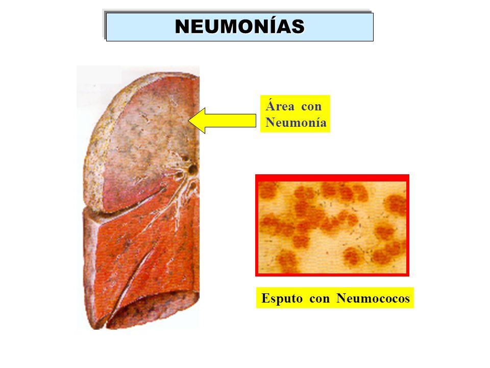 Área con Neumonía Esputo con Neumococos NEUMONÍAS