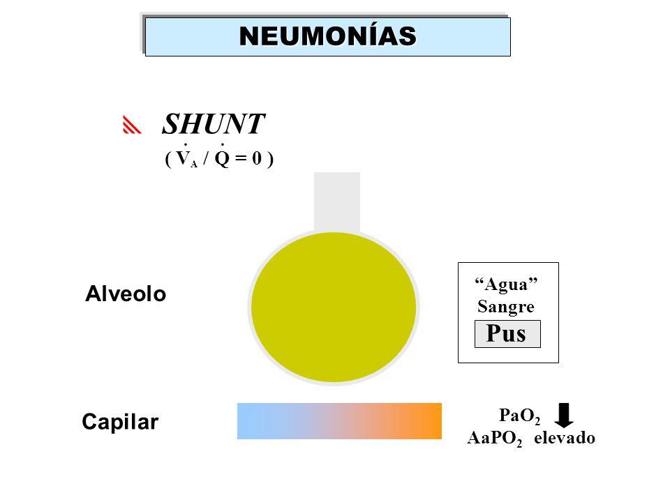 SHUNT ( V A / Q = 0 ).. Capilar Alveolo PaO 2 AaPO 2 elevado Agua Sangre Pus NEUMONÍAS