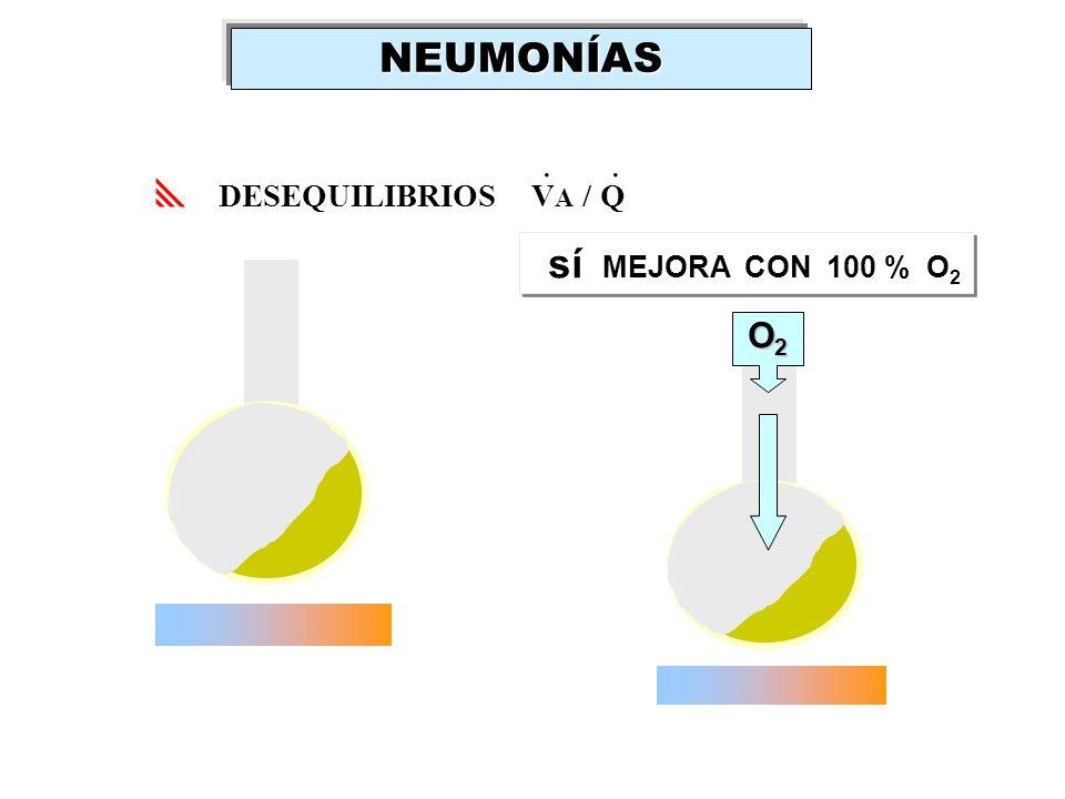 DESEQUILIBRIOS V A / Q.. sí MEJORA CON 100 % O 2 O2O2O2O2NEUMONÍAS