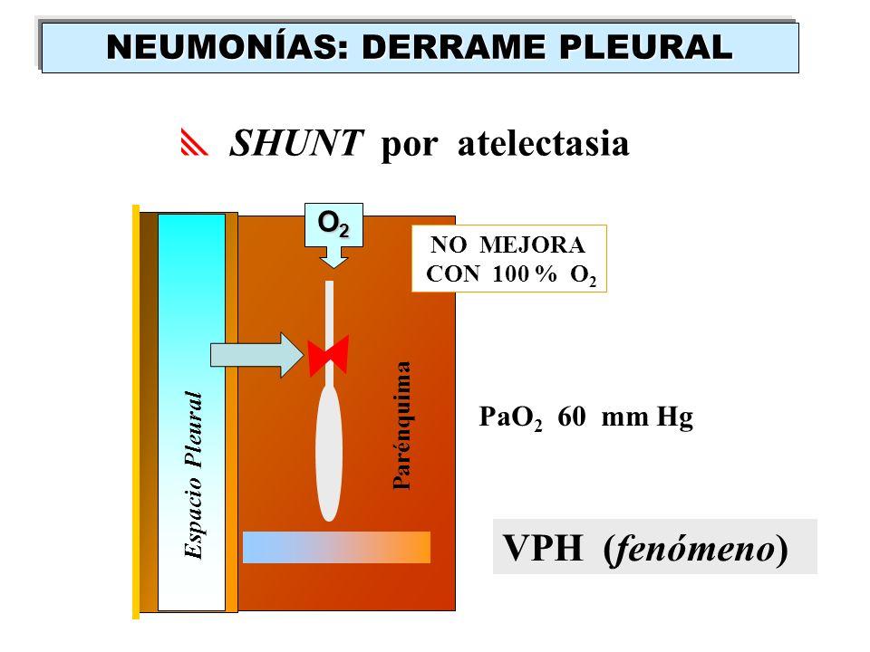 NO MEJORA CON 100 % O 2 O2O2O2O2 PaO 2 60 mm Hg SHUNT por atelectasia VPH (fenómeno) Espacio Pleural Parénquima NEUMONÍAS: DERRAME PLEURAL