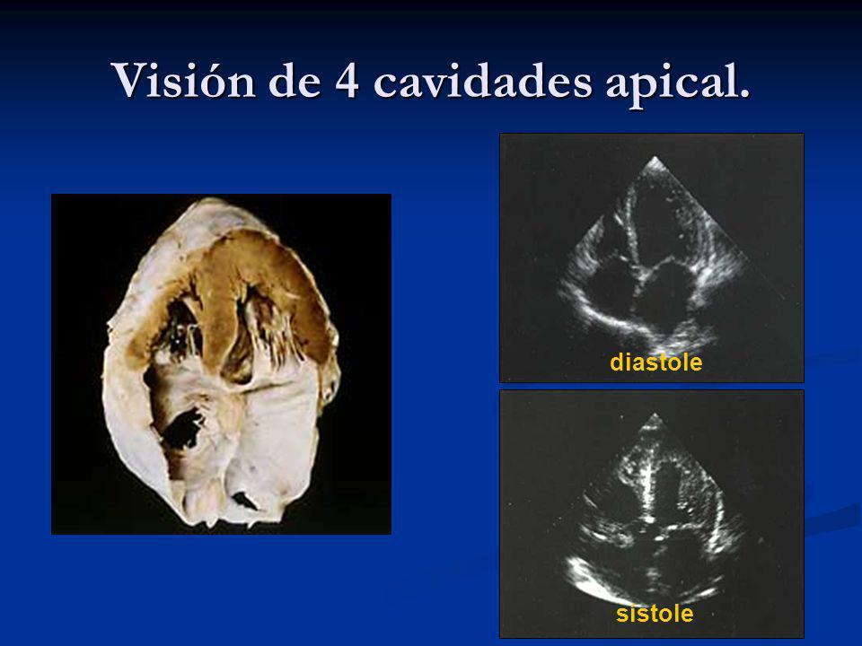 Visión de 4 cavidades apical. diastole sístole
