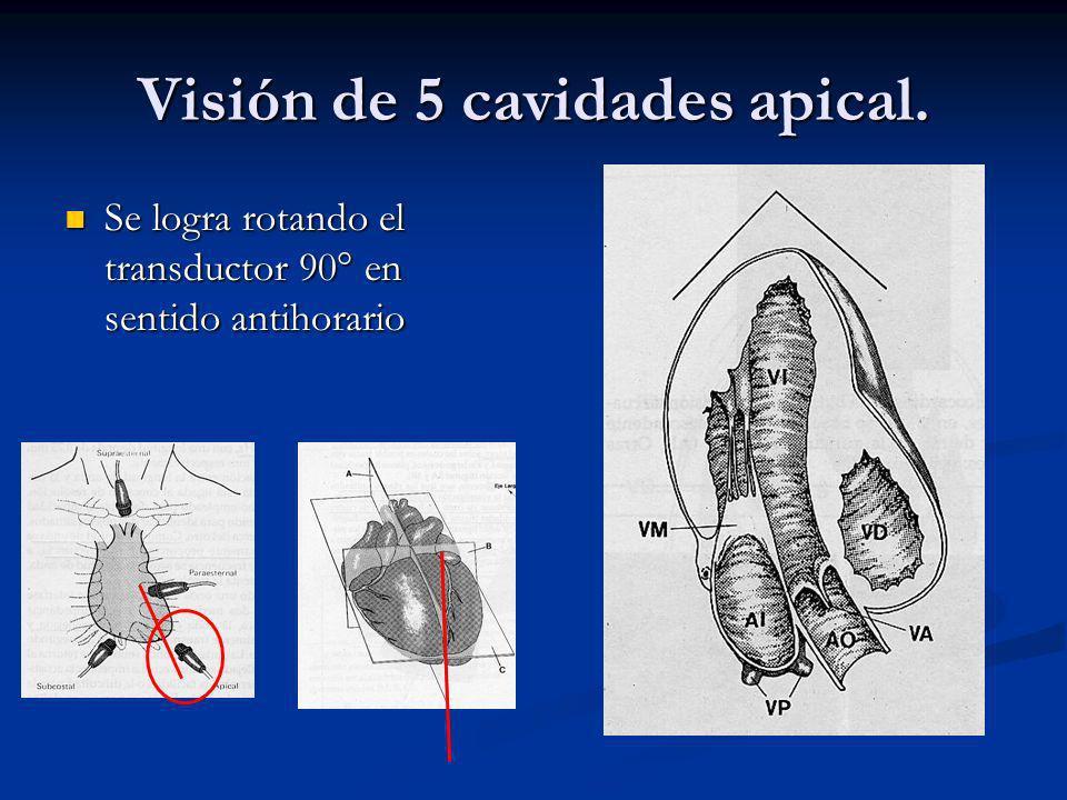 Visión de 5 cavidades apical.