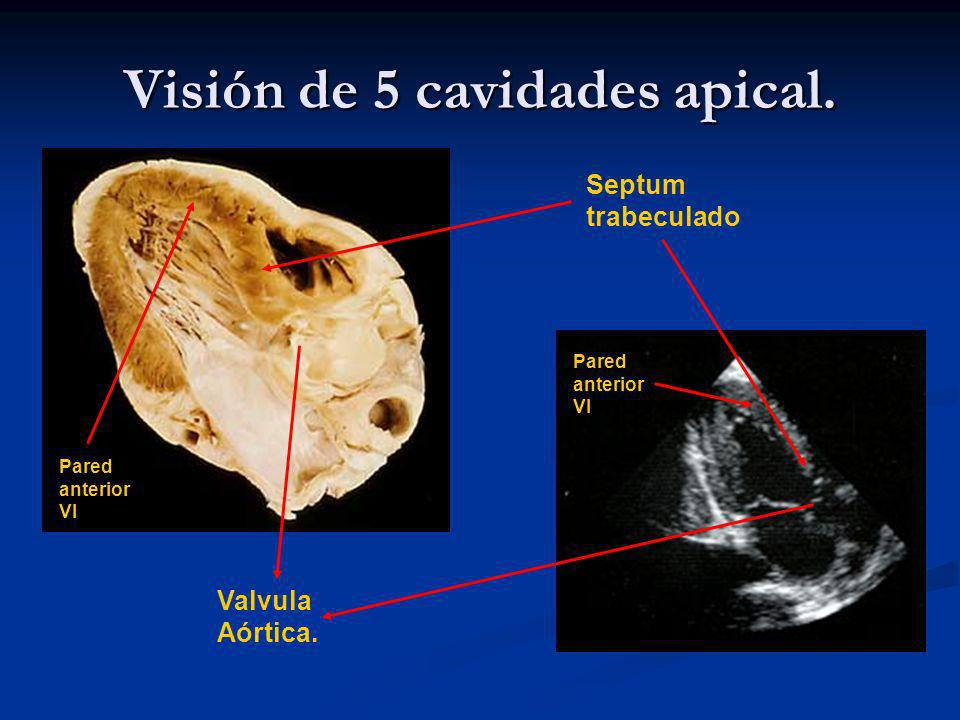 Visión de 5 cavidades apical.Septum trabeculado Valvula Aórtica.
