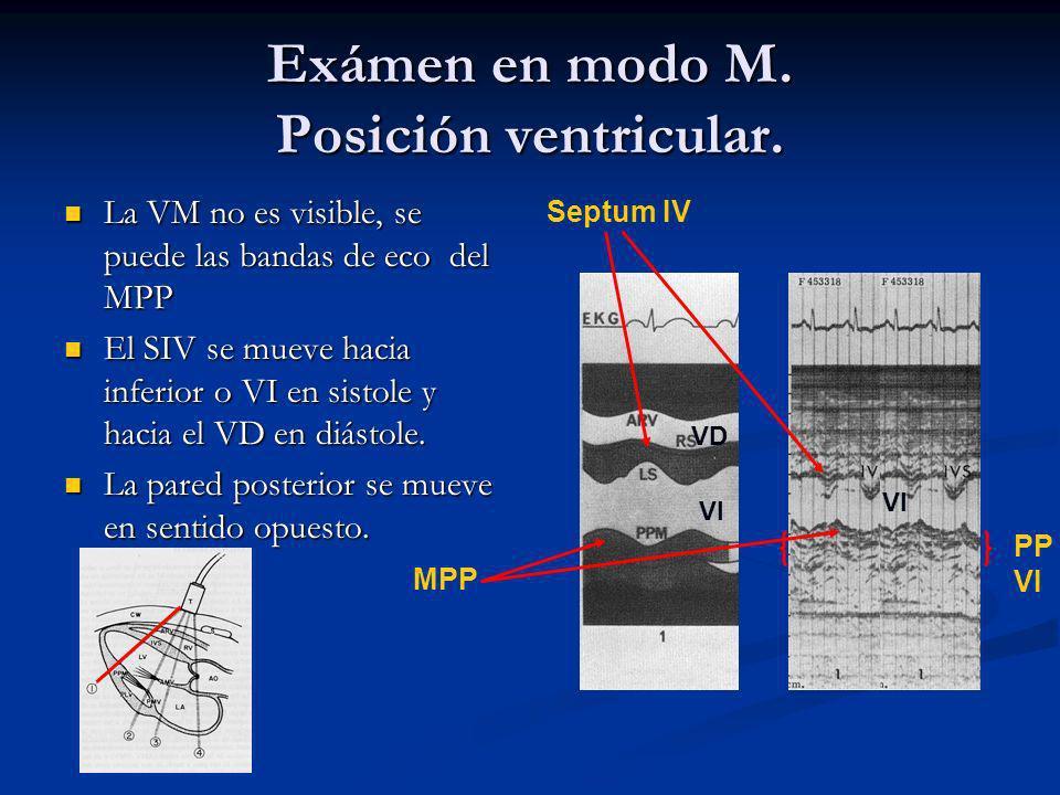 Exámen en modo M.Posición ventricular.