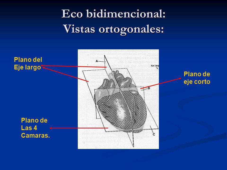 Modo M: Valvula pulmonar.La única valva que se ve es la posterior.
