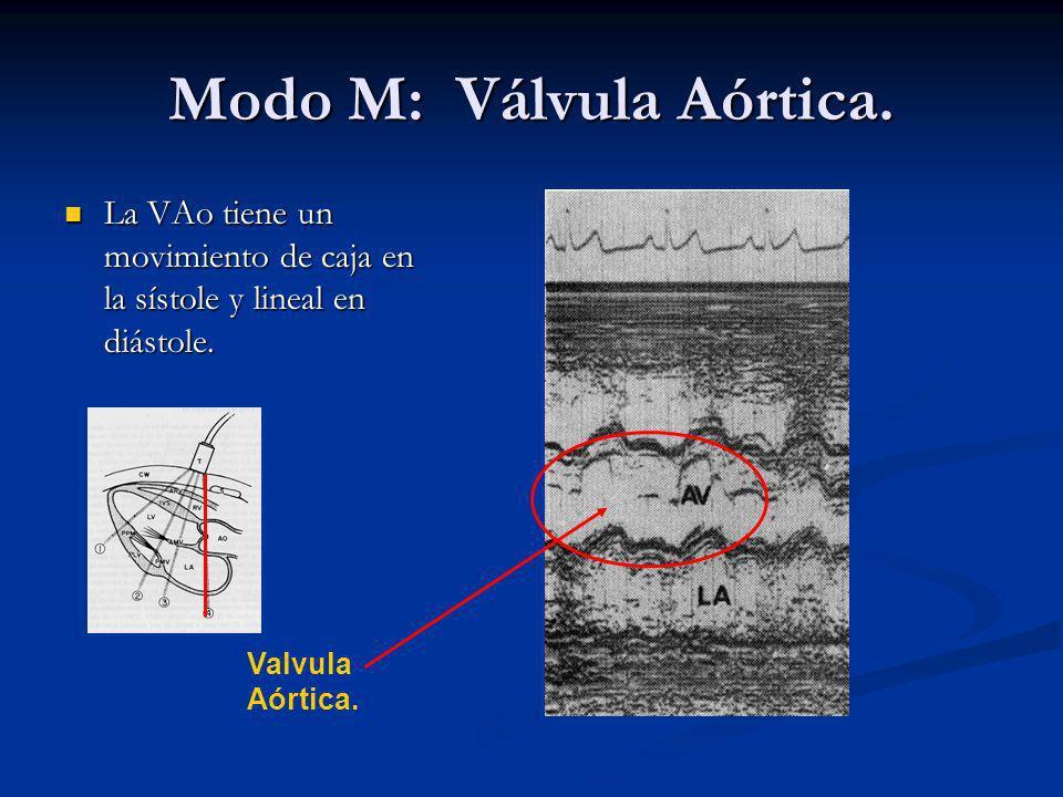 Modo M: Válvula Aórtica.La VAo tiene un movimiento de caja en la sístole y lineal en diástole.