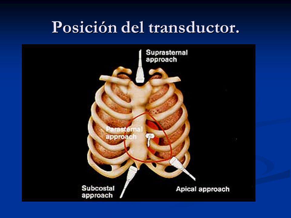 Visiones ecocardiograficas standart 1) Eje largo paraesternal.
