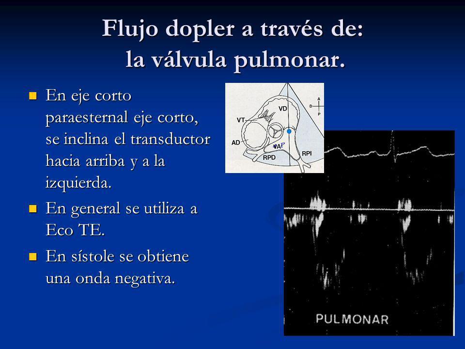 Flujo dopler a través de: la válvula pulmonar.