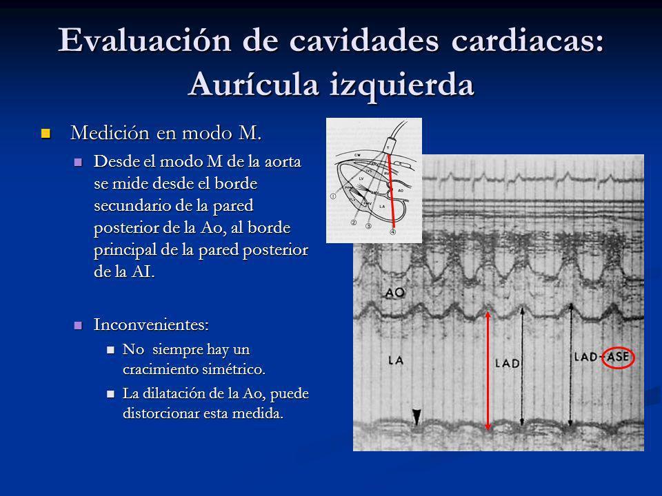 Evaluación de cavidades cardiacas: Aurícula izquierda Medición en modo M.