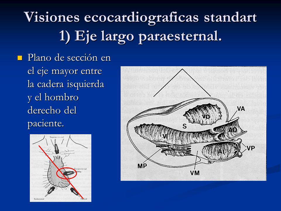 Visión de 4 cavidades sub costal. Septum Interventricular. Septum Interauricular.