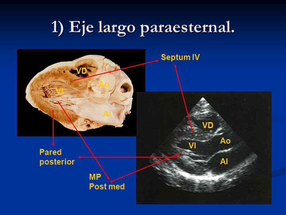 1) Eje largo paraesternal. Septum IV Pared posterior MP Post med AI VD Ao VI AI VD Ao VI