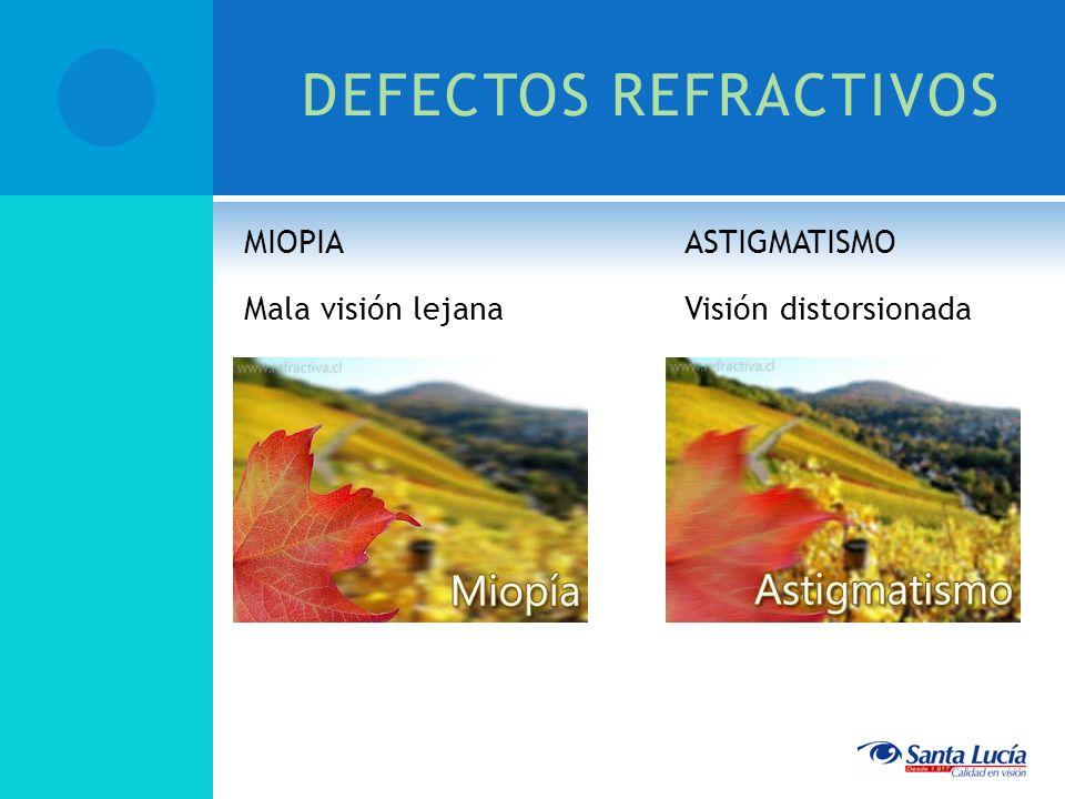 DEFECTOS REFRACTIVOS MIOPIA Mala visión lejana ASTIGMATISMO Visión distorsionada