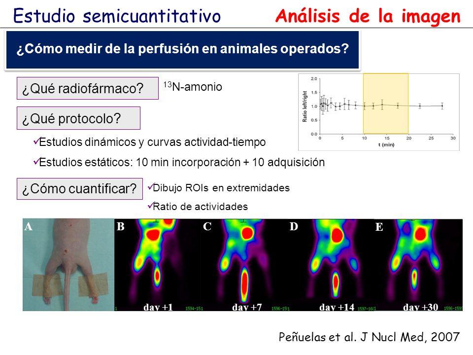 A BC D E day +1day +7day +14day +30 Peñuelas et al. J Nucl Med, 2007 ¿Qué radiofármaco ? Dibujo ROIs en extremidades Ratio de actividades 13 N-amonio