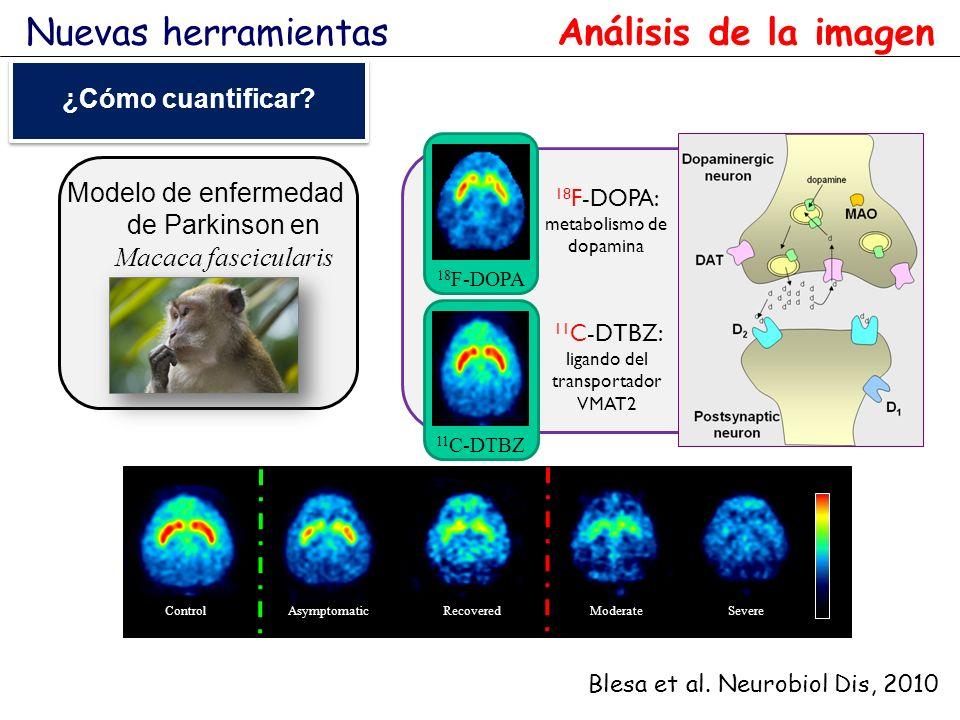 ControlAsymptomaticRecoveredModerateSevere Modelo de enfermedad de Parkinson en Macaca fascicularis 11 C-DTBZ 18 F-DOPA 11 C-DTBZ: ligando del transpo