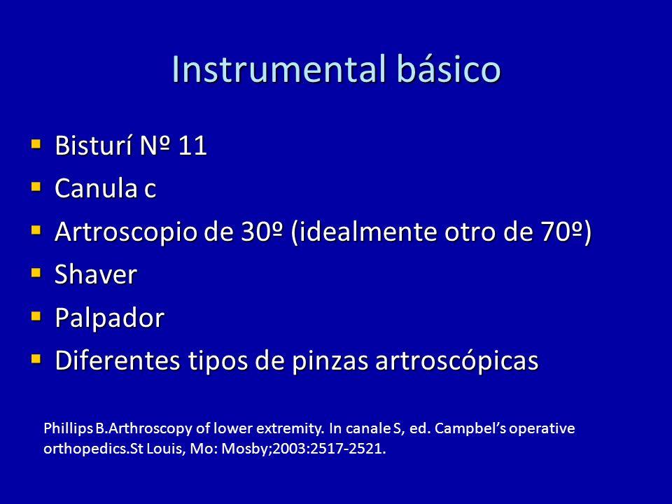 Instrumental básico Bisturí Nº 11 Bisturí Nº 11 Canula c Canula c Artroscopio de 30º (idealmente otro de 70º) Artroscopio de 30º (idealmente otro de 7