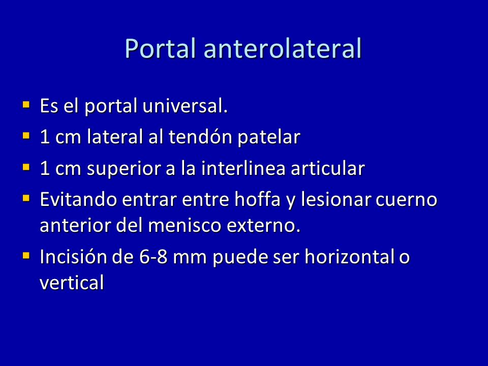Portal anterolateral Permite ver casi todas las estructuras de la rodilla y es el acceso principal para la visualización de esta, sin embargo tiene menor visibilidad del LCP, cuerno anterior del menisco externo y posterior del interno (en rodillas muy rígidas).