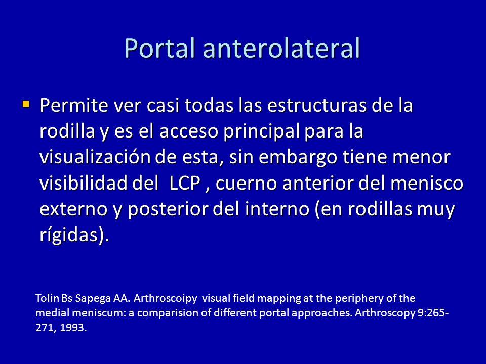 Portal anterolateral Permite ver casi todas las estructuras de la rodilla y es el acceso principal para la visualización de esta, sin embargo tiene me