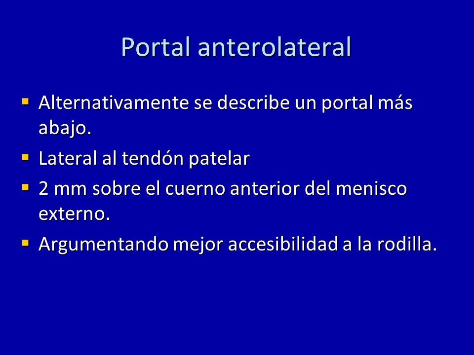 Portal anterolateral Alternativamente se describe un portal más abajo. Alternativamente se describe un portal más abajo. Lateral al tendón patelar Lat