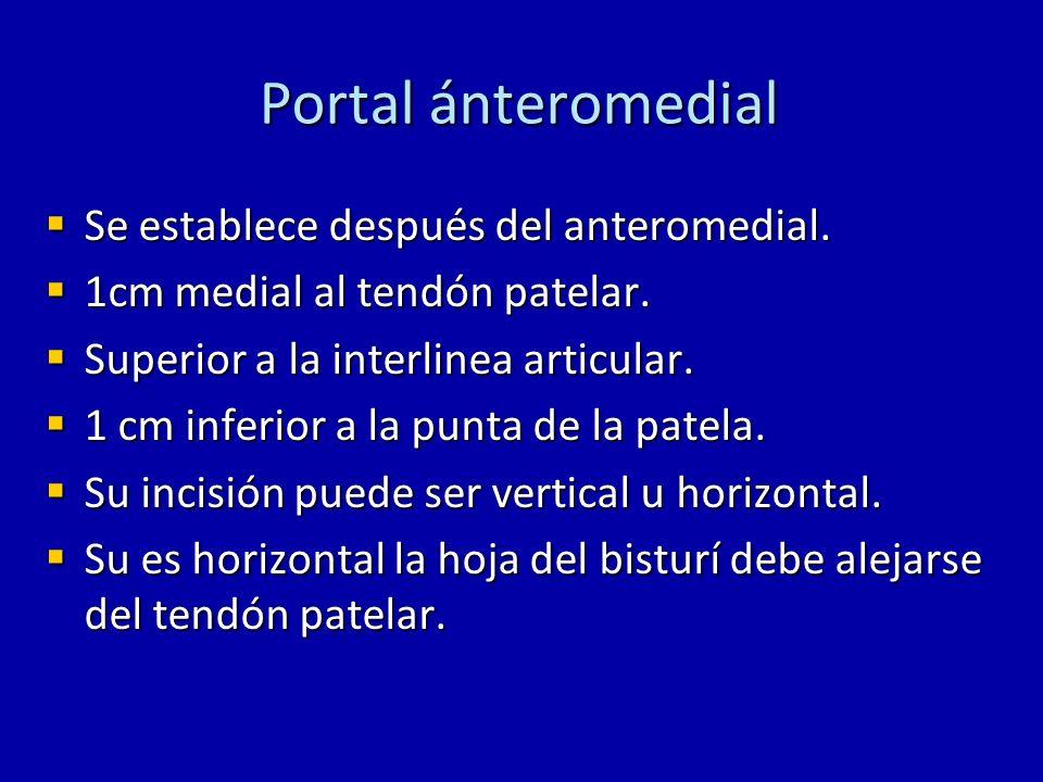Portal ánteromedial Se establece después del anteromedial. Se establece después del anteromedial. 1cm medial al tendón patelar. 1cm medial al tendón p