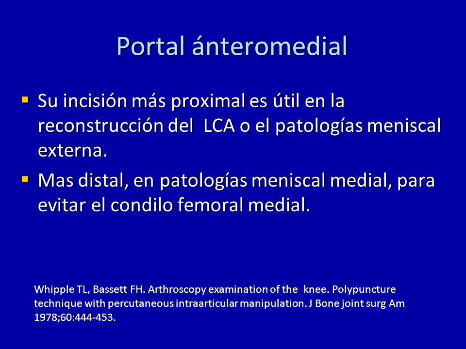 Portal posteromedial Considerado un portal operador por su buen acceso al tercio posterior del menisco y al LCP.