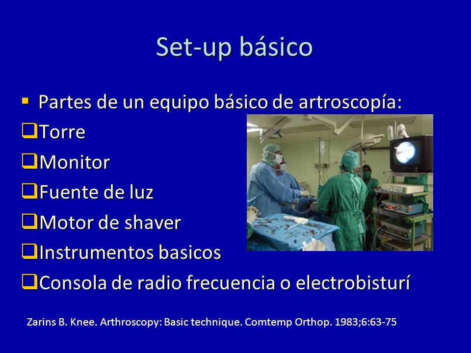 Set-up básico Partes de un equipo básico de artroscopía: Partes de un equipo básico de artroscopía: Torre Torre Monitor Monitor Fuente de luz Fuente d